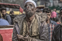 INDIA8233/ (Glenn Losack, M.D.) Tags: india beggars deformed charity hunger poverty untouchables islam muslim burned fires photojournalism