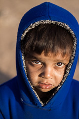 Dry cheeks (Harshal Orawala) Tags: small boy drycheeks cheeks blue eyes kutch bhuj gujarat india 121clicks