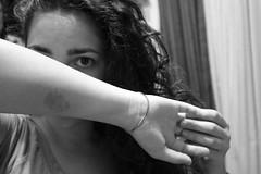 Jellyfish sting (Samantha M. C-) Tags: blackandwhite bw white black eye me myself jellyfish arm blackhair jellyfishstings