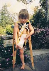 showing off the plaster cast (deadbudgie) Tags: crutches street glenbrook australia cast broken leg