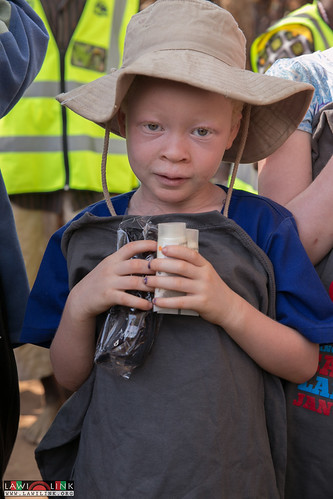 "PHALOMBE ALBINISM FESTIVAL • <a style=""font-size:0.8em;"" href=""http://www.flickr.com/photos/132148455@N06/23579055510/"" target=""_blank"">View on Flickr</a>"