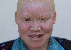 Tanzania, East Africa, Dar es Salaam, kulwa lusana a girl with albinism at under the same sun house, she lost one hand (Eric Lafforgue) Tags: africa charity portrait people childhood smiling horizontal tanzania person photography african daressalaam belief human believe innocence albino teenager genetic humanbeing oneperson curse ngo healer eastafrica witchdoctor tanzanian mutilated albinos pwa colorimage whiteskin lookingatcamera albinism underthesamesun oneteenagegirlonly colourimage africanethnicity 1people onegirlonly colourpicture utss tz183