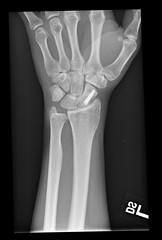 My Wrist (stormdog42) Tags: broken screw hardware xray wrist left