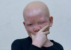 Tanzania, East Africa, Dar es Salaam, mwigulu matonange a boy with albinism at under the same sun house, some men hacked off his left arm with a machete (Eric Lafforgue) Tags: africa charity portrait people childhood horizontal tanzania person photography child african daressalaam belief human believe innocence albino genetic humanbeing oneperson curse ngo healer eastafrica witchdoctor tanzanian mutilated albinos pwa colorimage whiteskin lookingatcamera albinism underthesamesun oneboyonly colourimage africanethnicity 1people colourpicture utss tz155