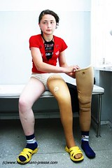 """I lost my leg in Chechnya."" (Daniela Haussmann (Press)) Tags: red kid war haussmann child victim leg bein krieg kind caucasus terror journalism kaukasus opfer chechnya tschetschenien jornalismus"