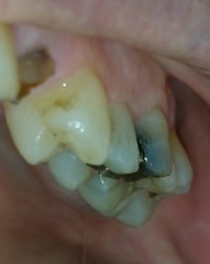Upper left molars (Teresa Trimm) Tags: tooth teeth cavity cavities dentist dental infection infections baby gum gums