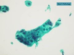 Qiao's Pathology: Pancreatic Ductal Adenocarcinoma, Cytology (Qiao's Pathology (Art and Science in Medicine)) Tags: stain microscopic pap pathology adenocarcinoma qiaos cytology pancreatic ductal