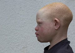 Tanzania, East Africa, Dar es Salaam, emmanuel festo a boy with albinism at under the same sun house, his left armwas hacked off above the elbow, he lost fingers on the right hand and his tongue was wounded by an attack (Eric Lafforgue) Tags: africa charity portrait people childhood horizontal tanzania person photography child african daressalaam belief human believe innocence albino copyspace genetic humanbeing oneperson curse ngo healer eastafrica witchdoctor tanzanian mutilated albinos pwa colorimage whiteskin albinism underthesamesun oneboyonly colourimage africanethnicity 1people colourpicture utss tz187