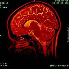prd brain scan