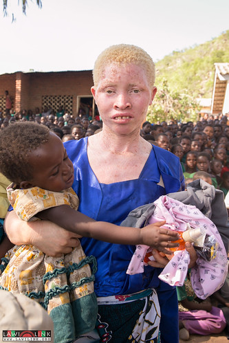 "PHALOMBE ALBINISM FESTIVAL • <a style=""font-size:0.8em;"" href=""http://www.flickr.com/photos/132148455@N06/23766431052/"" target=""_blank"">View on Flickr</a>"