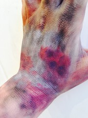 FX, infection series (chelseyedwardss) Tags: zombie makeup human infection fxmakeup