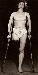 1960s amputee girl (jackcast2015) Tags: handicapped disabledwoman crippledwoman crutches amputee sakamputee