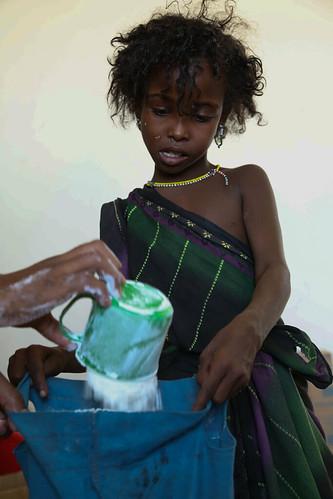 Seven years old Esia Kesse, is receiving emergency food aid at Dupti Health Centre, in Afar region, Ethiopia