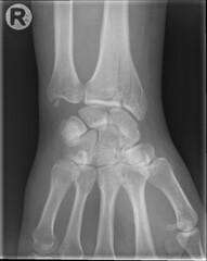 im000004 (Bo Mertz) Tags: hand xray wrist rntgen