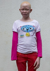 Tanzania, East Africa, Dar es Salaam, pendo serengema a girl with albinism at under the same sun house, she lost her right arm (Eric Lafforgue) Tags: africa charity portrait people childhood vertical tanzania person photography african daressalaam belief human believe innocence albino teenager genetic humanbeing oneperson curse ngo healer eastafrica witchdoctor tanzanian mutilated albinos pwa colorimage whiteskin lookingatcamera albinism underthesamesun oneteenagegirlonly colourimage africanethnicity 1people onegirlonly colourpicture utss tz168