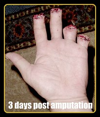 Finger Amputation (weaponeer) Tags: fingers amputation operation amputee partialhandamputation finger stump scar injury tramatic nubs fingerstump stumps stumpy cutofffingers choppedofffingers amputations scars messedup nub