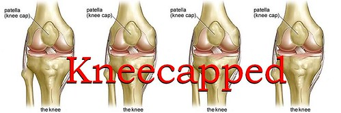 kneecapped