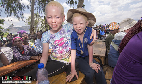 "Phalombe Lawilink Albinism_5 • <a style=""font-size:0.8em;"" href=""http://www.flickr.com/photos/132148455@N06/23849617446/"" target=""_blank"">View on Flickr</a>"