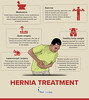 What are  the Treatment for Hernia? (FindaTopDocNY) Tags: hernia diseases health
