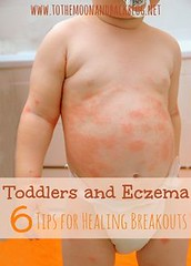 Toddlers and Eczema: (preciouskidsgreatparents) Tags: kids parents paradise outdoor furniture great precious toddlers wicker eczema