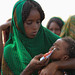 Hosma Mohammed a mother of Amin Amirah checking for Severe Acute Malnutrition (SAM) at Lubakda Kebele of Kori Woreda in Afar Regional state.