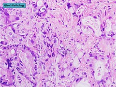 Qiao's Pathology: Adenocarcinoma of the Urinary Bladder (Qiao's Pathology (Art and Science in Medicine)) Tags: microscopic pathology urinary bladder adenocarcinoma qiaos