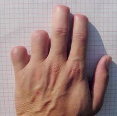 Finger Amputations (weaponeer) Tags: amputee amputation fingers stump hand operation partialhandamputation finger scar injury tramatic nubs fingerstump stumps stumpy cutofffingers choppedofffingers amputations scars messedup nub