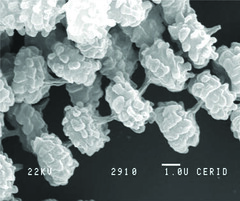 Aspergillus niger var. awamori (Nakazawa) Al-Musallam (RVCTA Imgenes) Tags: aspergillus seccinnigri