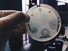 Mi primer diagnóstico microbiológico: Staphylococcus aureus meticilino resistente (MRSA) (Javier Díaz Munita) Tags: medicina clínica medica microbiology tecnologia resistente salud tecnología staphylococcus aureus udp mrsa microbiología médica microbiologia meticilino