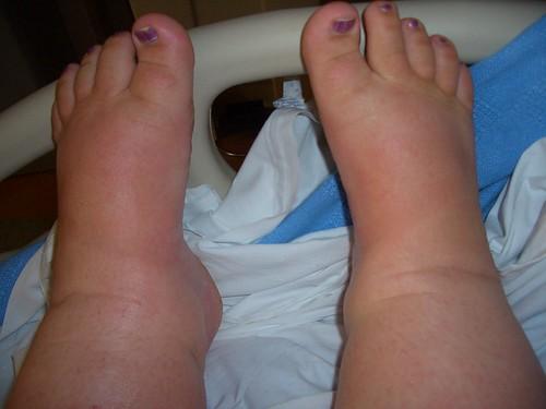 sausage toes