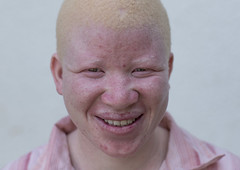 Tanzania, East Africa, Dar es Salaam, jenipher stanford a teen with albinism at under the same sun house (Eric Lafforgue) Tags: africa charity portrait people childhood smiling horizontal tanzania person photography african daressalaam belief human believe innocence albino teenager genetic humanbeing oneperson curse ngo healer eastafrica witchdoctor tanzanian mutilated albinos pwa colorimage whiteskin lookingatcamera albinism underthesamesun oneteenagegirlonly colourimage africanethnicity 1people onegirlonly colourpicture utss tz153