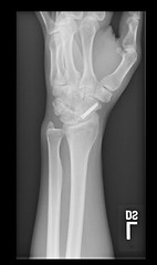 My Wrist (stormdog42) Tags: broken screw hardware xray wrist left