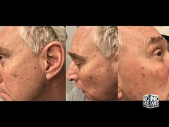 Exclusive: Trump Operative Roger Stone Survives Assassination Attempt (Download Youtube Videos Online) Tags: exclusive trump operative roger stone survives assassination attempt