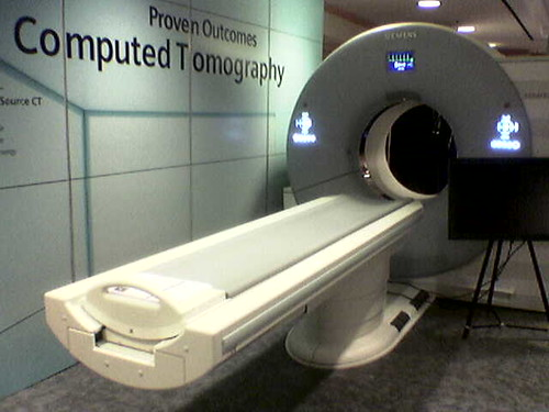 ct scan for lung cancer screening