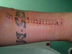 Ma broken arm (randomonix) Tags: broken tattoo hospital scotland pain break skateboarding ivan bust gnarly getty 5000 dope sick healing scar fucked staples gsm livingston bottletop radius omond ulna brokenbones concreteskatepark june2006 unlimitedphotos