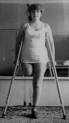 Above knee amputee (jackcast2015) Tags: handicapped disabledwoman crippledwoman crutches amputee sakamputee