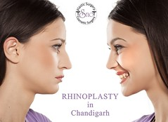 RHINOPLASTY in Chandigarh (dromijindal55) Tags: nose rhinoplasty surgery before after plastic comparison cosmetic background isolated face woman beauty operation white young medical profile surgical procedure aesthetic beautiful female surgeon reconstructive fashion medicine beforeafter sad happy side compare macedonia