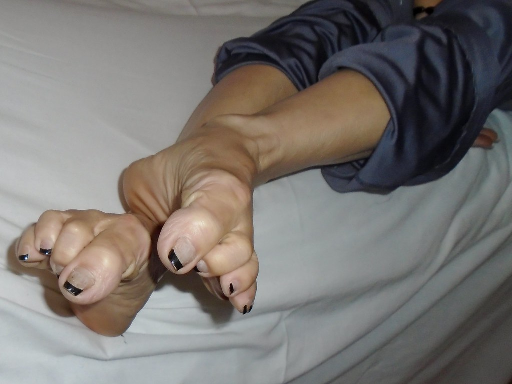 Mature toes and soles