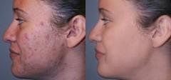 وصفة طبيعية للتخلص من بقع الوجه الداكنة في 15 دقيقة.. لا تفوتيها (Arab.Lady) Tags: وصفة طبيعية للتخلص من بقع الوجه الداكنة في 15 دقيقة لا تفوتيها