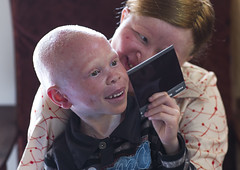 Tanzania, East Africa, Dar es Salaam, mariam staford and baraka cosmas people with albinism looking at a polaroid picture at under the same sun house (Eric Lafforgue) Tags: africa charity boy people woman childhood horizontal tanzania person photography togetherness african daressalaam belief indoors human believe innocence albino teenager genetic 2people twopeople humanbeing tenderness curse ngo healer eastafrica witchdoctor tanzanian mutilated albinos pwa colorimage whiteskin albinism underthesamesun colourimage africanethnicity colourpicture utss tz171