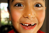 Front Teeth (Dennisbon) Tags: dennisbon canon eos 7d melbourne australia indoors frontview closeup headshot oneperson boyface gap missing frontteeth smiling happy child 6years age