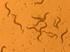 I:  these are nematodes by snickclunk, on Flickr