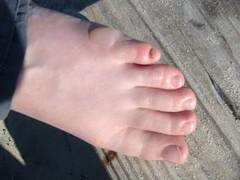 20060806 - Assateague 2006 - 103-0386 - Carolyn's burned foot - after it got bad