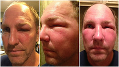 Bee Sting Gone Bad (OakleyOriginals) Tags: red face ouch veil fat bees sting cheeks eyebrow swollen lesson stinger puffy benadryl reaction beesting honeybees disfigured steroid beekeeper