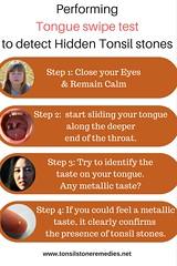 Tongue swipe test to detect hidden Tonsil stones (tonsilstoneremedies.net) Tags: tonsilstones badbreath