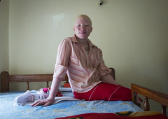 Tanzania, East Africa, Dar es Salaam, jenipher stanford a teen with albinismin in her bedroom at under the same sun house (Eric Lafforgue) Tags: africa charity people childhood horizontal tanzania person photography african daressalaam belief indoors human believe innocence albino teenager copyspace genetic humanbeing oneperson curse ngo healer eastafrica witchdoctor tanzanian mutilated albinos pwa colorimage whiteskin lookingatcamera albinism underthesamesun fulllenght oneteenagegirlonly colourimage africanethnicity 1people onegirlonly colourpicture utss tz146