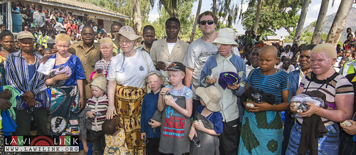 "Phalombe Lawilink Albinism_16 • <a style=""font-size:0.8em;"" href=""http://www.flickr.com/photos/132148455@N06/23579898630/"" target=""_blank"">View on Flickr</a>"