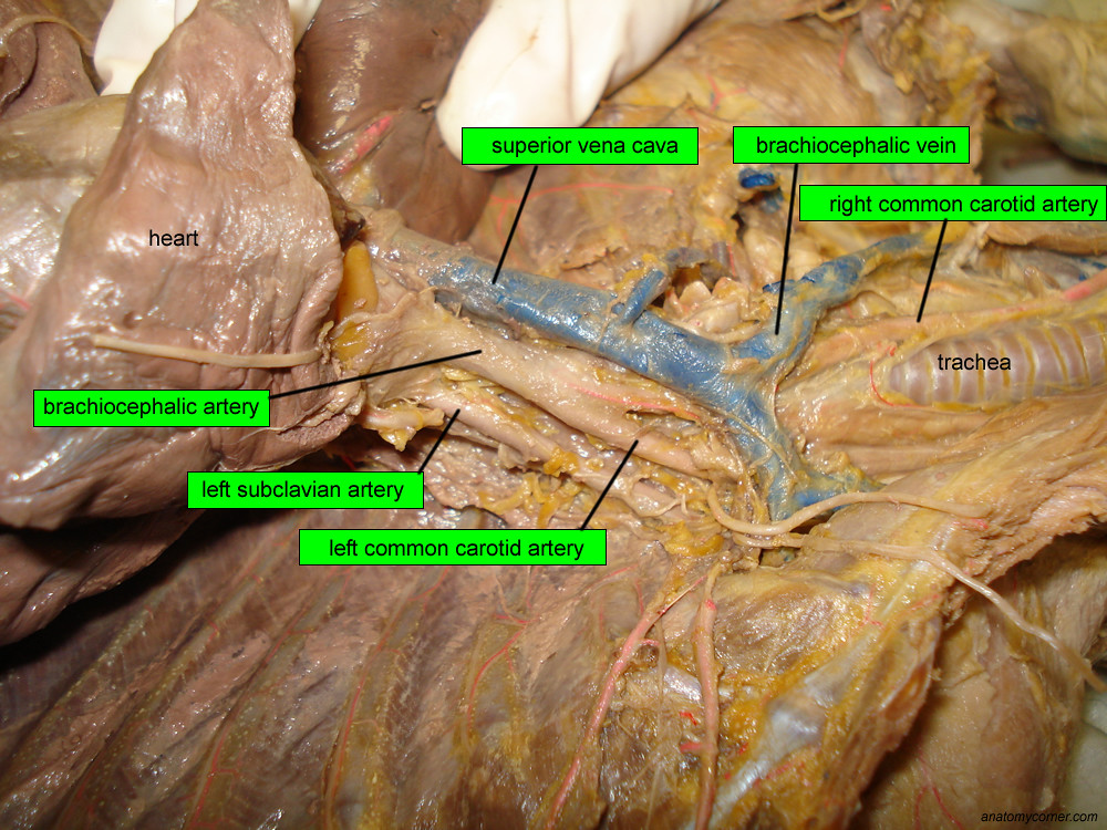 Major Arteries and Veins of the Cat | Anatomy Corner