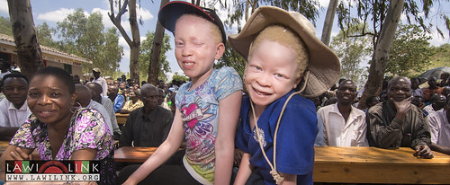 "Phalombe Lawilink Albinism_4 • <a style=""font-size:0.8em;"" href=""http://www.flickr.com/photos/132148455@N06/23579995390/"" target=""_blank"">View on Flickr</a>"