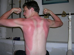 Lesson 1: Sunscreen (TQWestphal) Tags: shirtless sun man guy nude back nikon funny muscle burn topless half coolpix sunburn flex 3200 tanline
